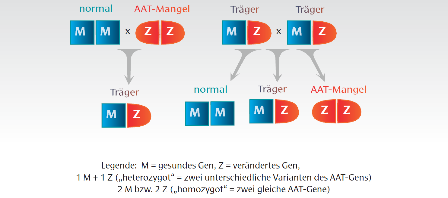 Alpha-1-Antitrypsinmangel-Vererbungsschema
