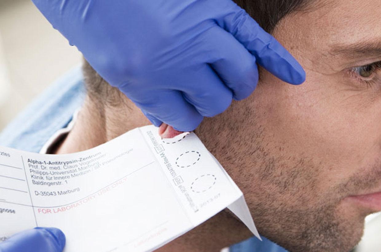 Mann bekommt Blut am Ohr abgenommen - Alpha-1-Antitrypsin-Mangel Schnelltest