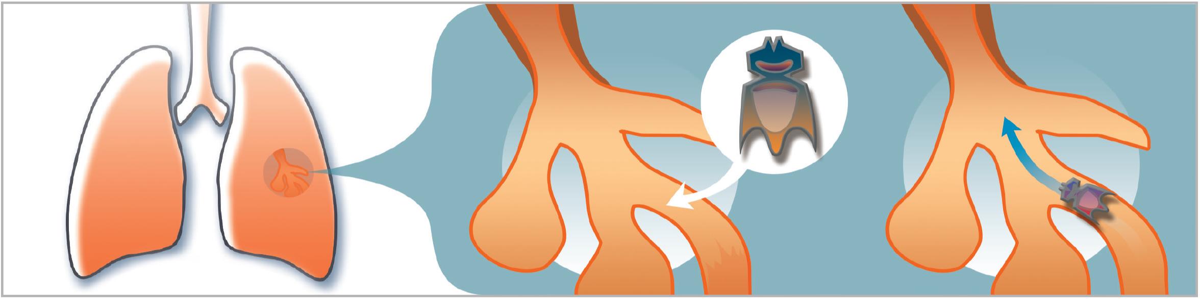 Im Rahmen einer Lungenspiegelung können Endobronchialventile gesetzt werden, die den Luftstrom in die Verästelungen der Lungen regeln. Damit wird die Funktionseinschränkung bei einem Lungenemphysem gemindert.